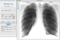 XRay_Lung_small
