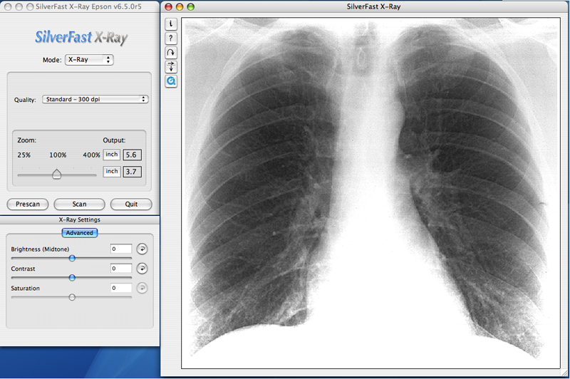 X Rays Of Lungs. X-ray lung